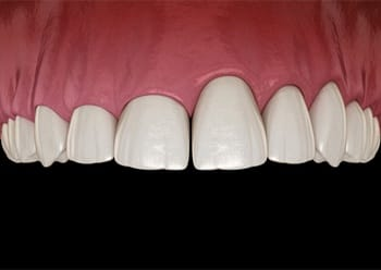 A digital image of an uneven gum line that needs crown lengthening