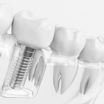Single dental implant and crown model against white background