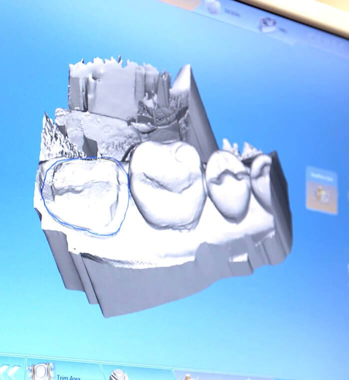 CEREC digital dental crown design on computer monitor