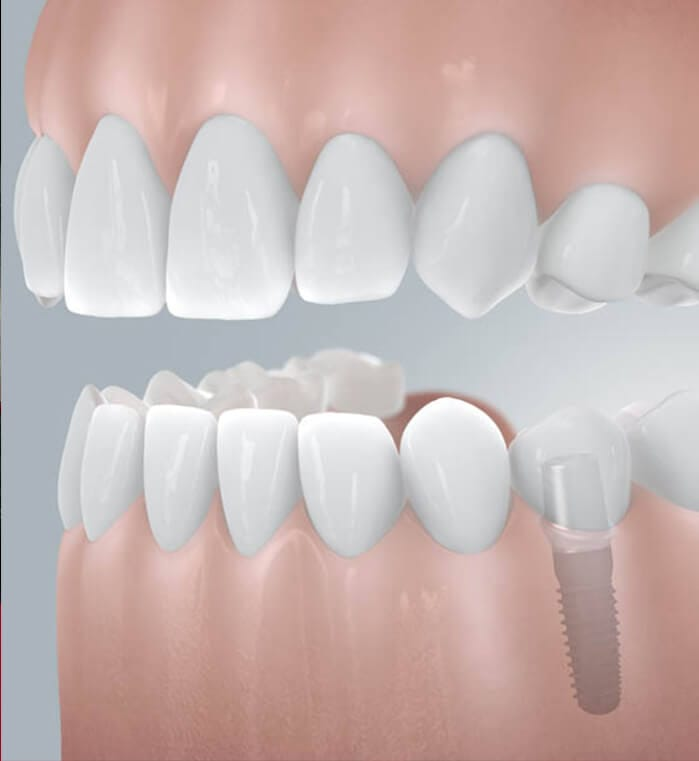 3D digital rendering of smile with dental implant supported replacement tooth