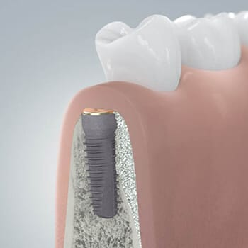 Animated rendering of dental implant after placement