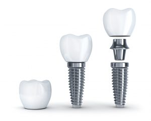 Get the dental implants in Piedmont you need all in one practice!