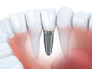 close-up of a dental implant