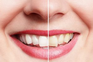 White and stained teeth
